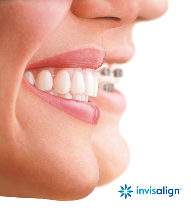 Ortodoncia invisible en zaragoza