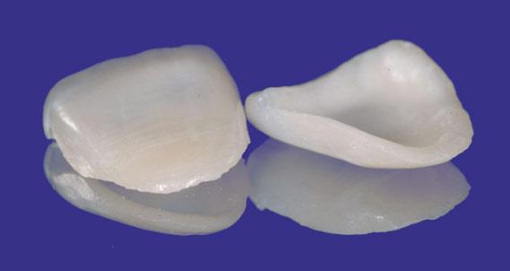 Dentistas especialistas en Carillas Dentales en Zaragoza