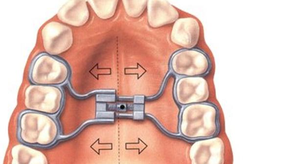 Ortopedia maxilar en Zaragoza, brackets para niños