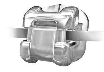 Ortodoncia de autoligado