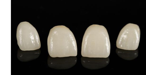 Odontologos especialistas en carillas de porcelana en Zaragoza