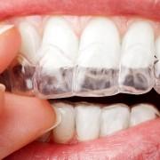 ortodoncia invisible en Zaragoza. Sistema Invisalign