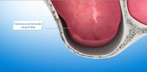 Acceso lateral del seno maxilar y membrana de Schneider desprendida