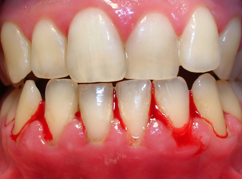 gingivitis encias
