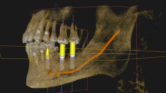 radiografia implantes dentales