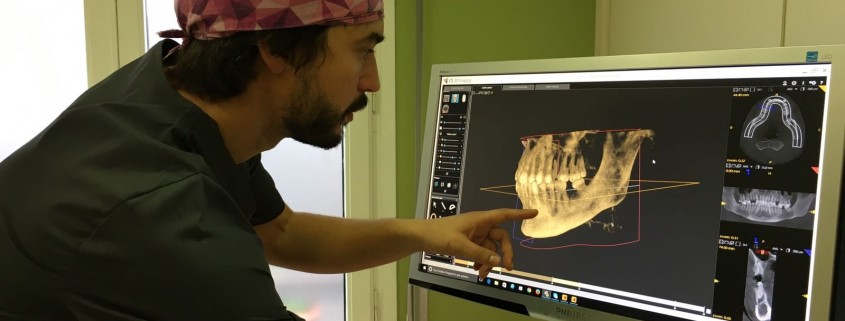 pérdida ósea dental