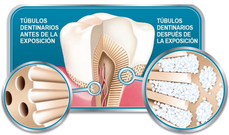tubulos sensibilidad dental
