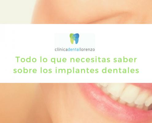 guia implantes dentales