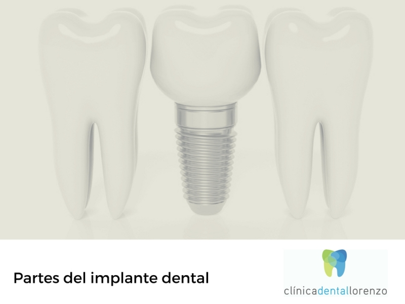 partes implante dental