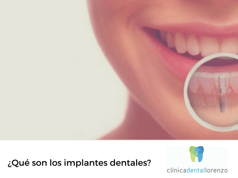 que son implantes dentales