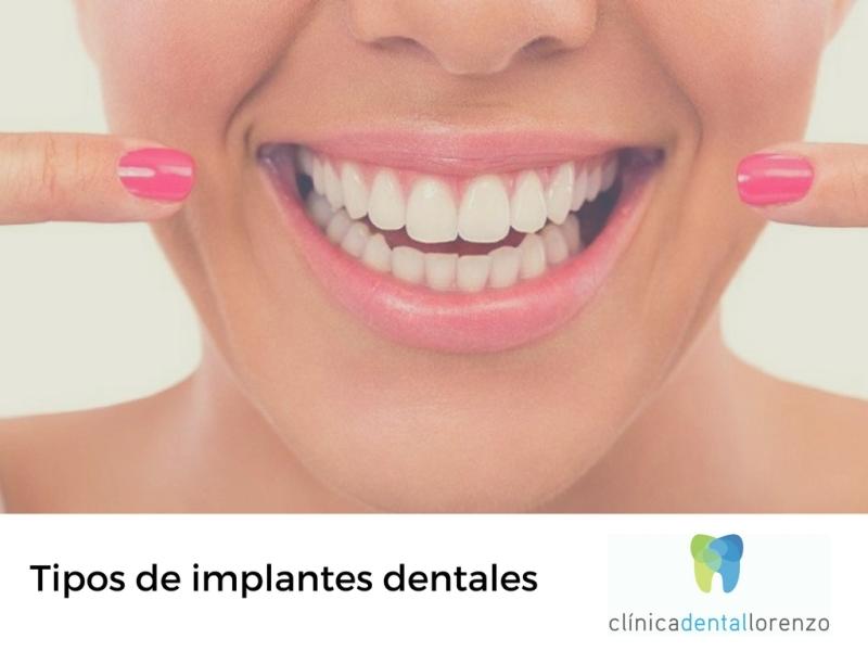 tipos implantes dentales