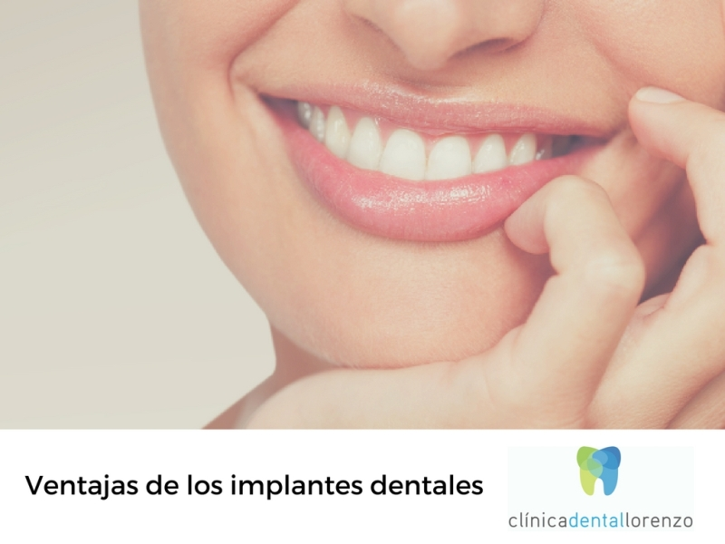 ventajas implantes dentales