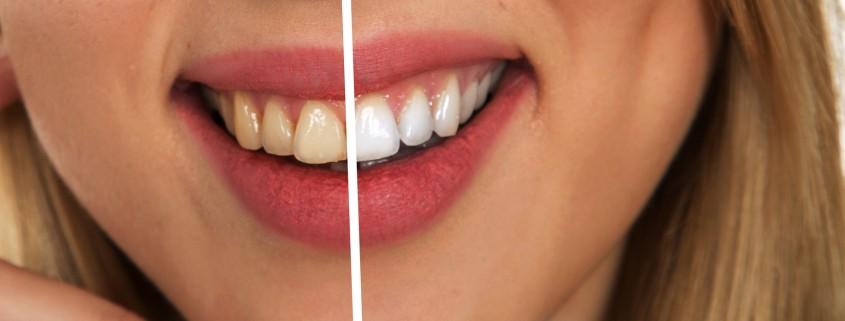 Manchas en los dientes por Tetraciclina