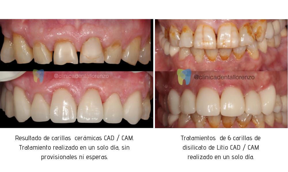 Tratamientos de 6 carillas de disilicato de Litio CAD _ CAM realizado en un solo día