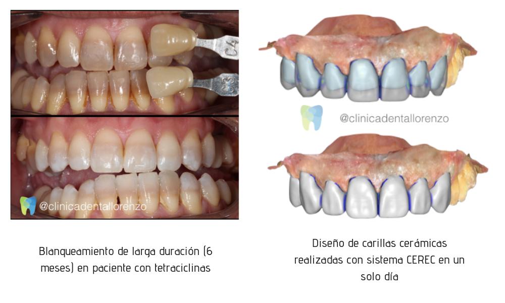 Tratamientos tetraciclina manchas dientes