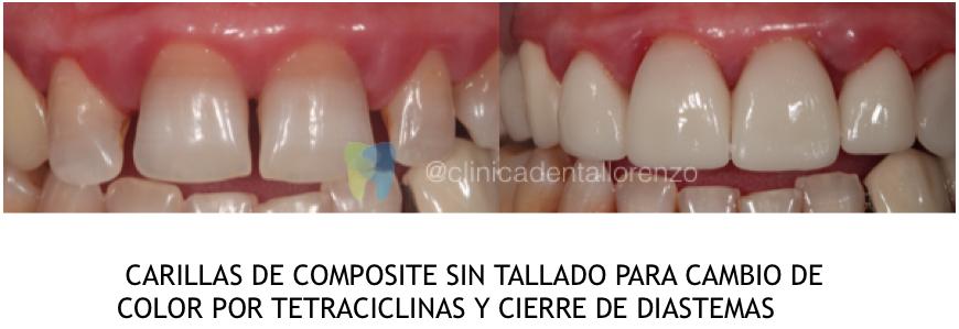 Manchas por tetraciclina en los dientes · Soluciones Clínica Dental Lorenzo