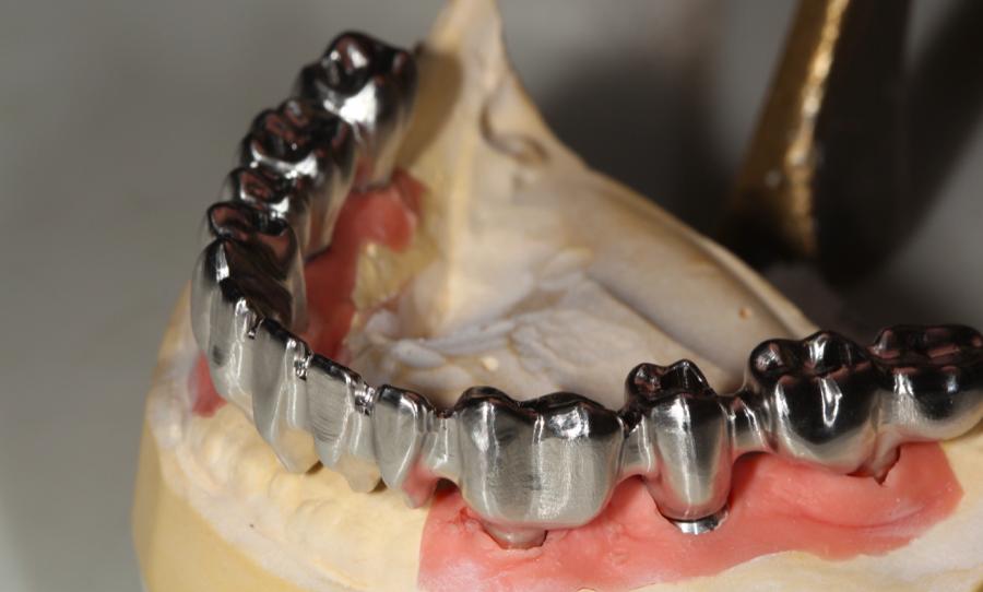 Prótesis Híbrida Dental · Clínica Dental Lorenzo en Zaragoza