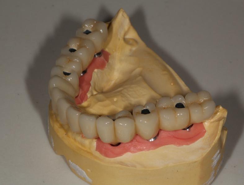 Qué Es Una Prótesis Híbrida Dental Y Qué Ventajas Tiene
