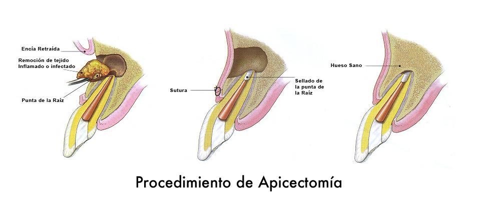 Apicectomía dental Clínica Lorenzo Zaragoza