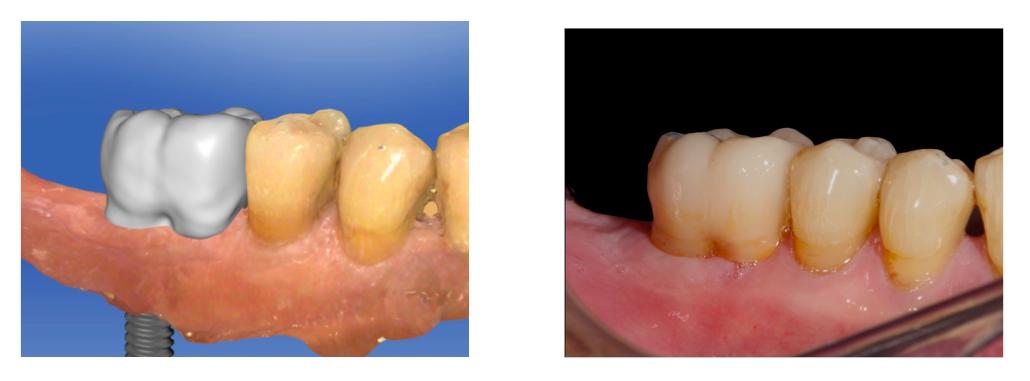 Odontologia Digital Escaner Intraoral Clinica Lorenzo Zaragoza