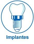 Implantes dentales en clínica dental en Zaragoza