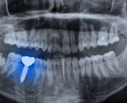 tecnología de implantologia