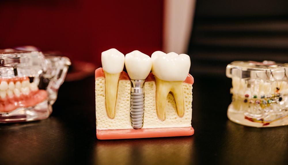 implantes-dentales-en-zaragoza-clinica-lorenzo