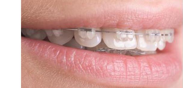Ortodoncia de brackets esteticos en Zaragoza