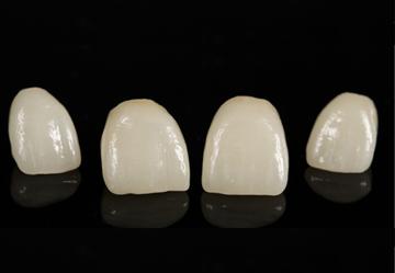 Carillas cerámicas