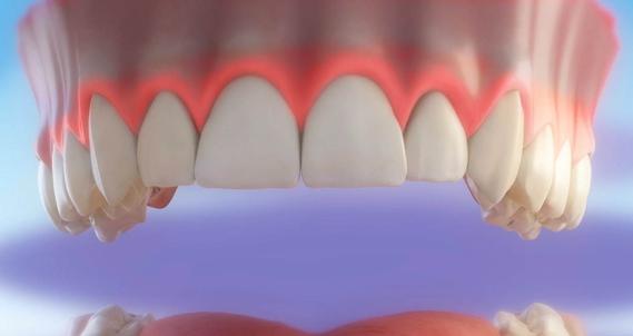 Tratamientos de Estética Dental en Zaragoza