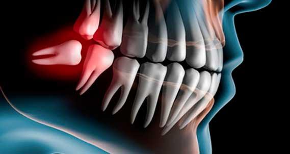 Cirugía Oral y Maxilofacial en Zaragoza