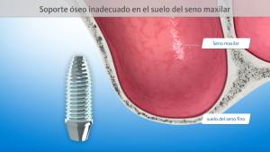 Hueso insuficiente para la colocación de implantes en el seno maxilar