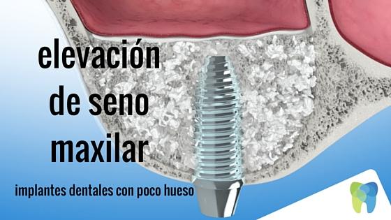 elevación seno maxilar en Zaragoza