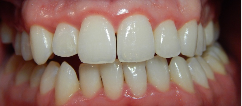 gingivitis despues