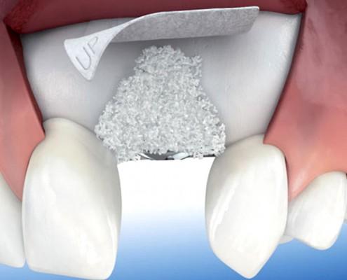 Injerto de hueso dental Zaragoza