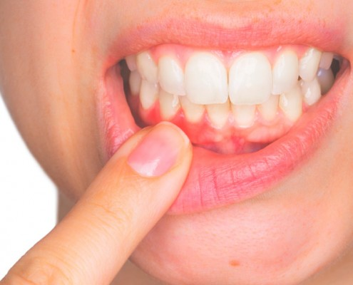 Recuperar las encías perdidas Clínica Dental Lorenzo