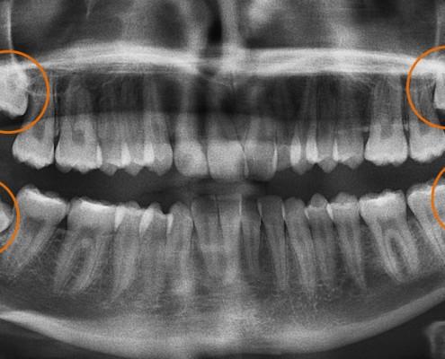 Muelas del juicio - Clínica Dental Lorenzo