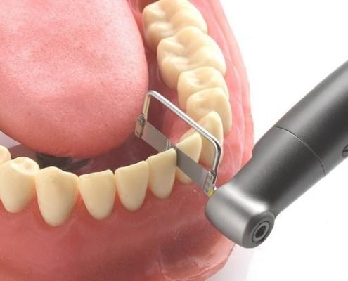 Stripping Dental · Clínica Dental Lorenzo Zaragoza