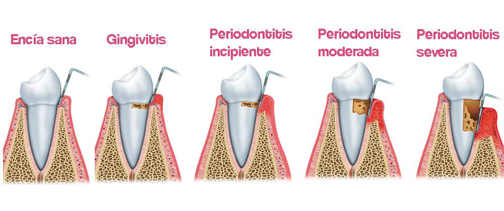 Periodontitis · Clínica Lorenzo Zaragoza