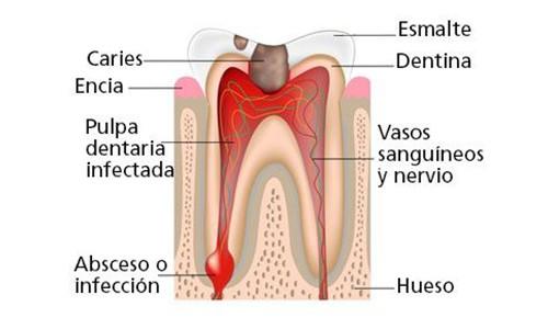 Absceso dental Clínica Lorenzo Zaragoza